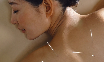One, Three, or Five Acupuncture Treatment Packages at First Chiropractic & Acupuncture (Up to 75% Off)