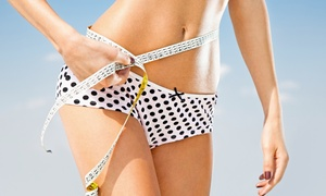 Weekend Weight Loss Center: One, Two, or Four Nutritional IVs at Weekend Weight Loss Center (Up to 75% Off)