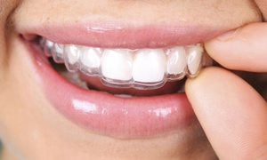 SmileCareClub: $59 for an At-Home Invisible Aligner Treatment Evaluation with Impression Kit from SmileCareClub ($95 Value)