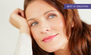 Calista Skin & Laser Center: Microdermabrasion with Optional Micro-Needling at Calista Skin & Laser Center (Up to 56% Off). Three Options.