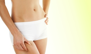 Envy Face and Body: Three, Six, or Nine Lipo-Cavitation Treatments at Envy Face and Body (Up to 90% Off)