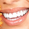 Up to 77% Off Teeth-Whitening Sessions