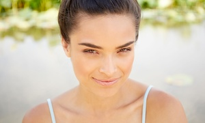 St Croix Skincare: One or Three Micro-Needling Treatments for Face or Face and Neck at St Croix Skincare (Up to 52% Off)