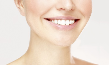 $69 for One In-Office Teeth-Whitening Treatment at Pearl Medspa ($199 Value)