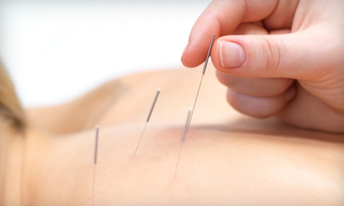 Maryland Holistics - Woodside Park: One or Two Acupuncture Treatments with Consultation at Maryland Holistics in Silver Spring (Up to 72% Off)