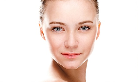 $75 for One Diamond Microdermabrasion, Peel, and Mini Facial at Sherri Lynn Esthetics ($150 Value)