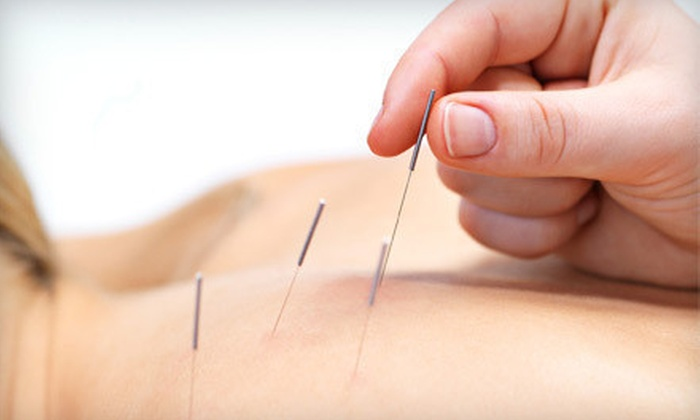 Valley Natural Health - Hoover: One or Three Acupuncture Sessions at Valley Natural Health (Up to 66% Off)
