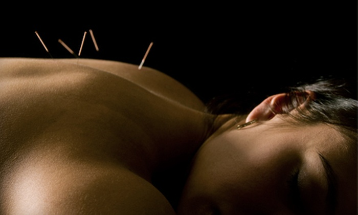 Pennridge Wellness Center - Pennridge Wellness Center: One, Three, or Five Acupuncture Sessions at Pennridge Wellness Center in Blooming Glen (Up to 86% Off)