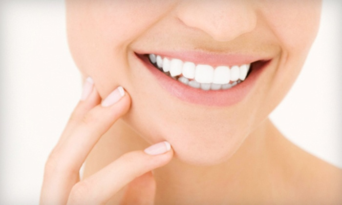 Elegance Medi Spa - Kitsilano: One or Two In-Office Teeth-Whitening Treatments at Elegance Medi Spa (Up to 80% Off)