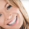 Up to 80% Off Cosmetic Dentistry in Fitchburg