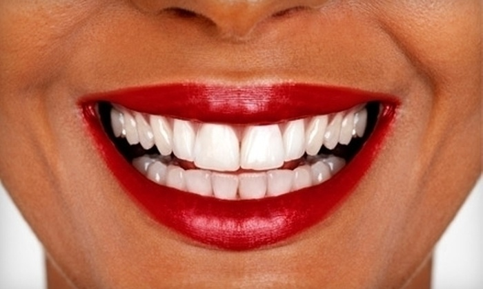 Center for Dentistry - Hobbison West: $129 for an In-Office Teeth-Whitening Treatment at the Center for Dentistry in Naperville ($749 Value)