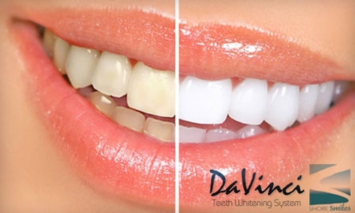 Shore Smiles - Charleston: $99 for a 60-Minute In-Office Whitening with DaVinci Teeth Whitening at Shore Smiles  ($317 Value)