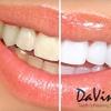 69% Off Teeth Whitening