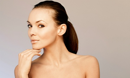 Photofacial with Optional Microdermabrasion at Vancouver Laser Skin Care Clinic (Up to 67% Off)