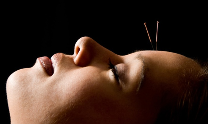 Sage Center For Wellness Baltimore - Ellicott City: $44 for $80 Worth of Acupuncture at Sage Center For Wellness Baltimore