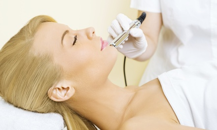 One, Three, or Five Microdermabrasions with Facials at Renew Spa (Up to 39% Off)