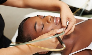 Bella Juvenation: One or Four Microdermabrasion Treatments with Facials at Bella Juvenation (Up to 78% Off)