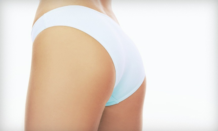 Trimcare & Safe Laser Centers - Paradise: Consultation and One or Two i-Lipo Body-Contouring Treatments at Trimcare & Safe Laser Centers (Up to 60% Off)