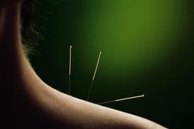 IKA Acupuncture Clinic Oriental Medicine LLC: Up to 68% Off accupuncture at IKA Acupuncture Clinic Oriental Medicine LLC