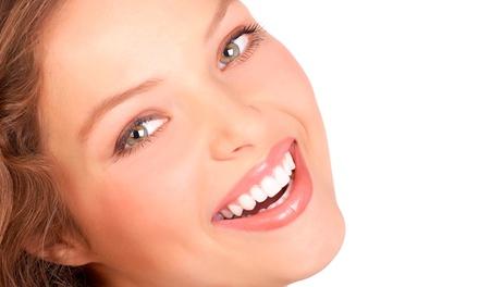 Limpieza bucal con ultrasonidos, pulido, fluorización, revisión y blanqueamiento LED desde 12,95 € en Exceldental