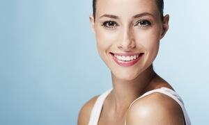A Silva Dental Studio: Cosmetic Braces: One or Two Arches at A Silva Dental Studio