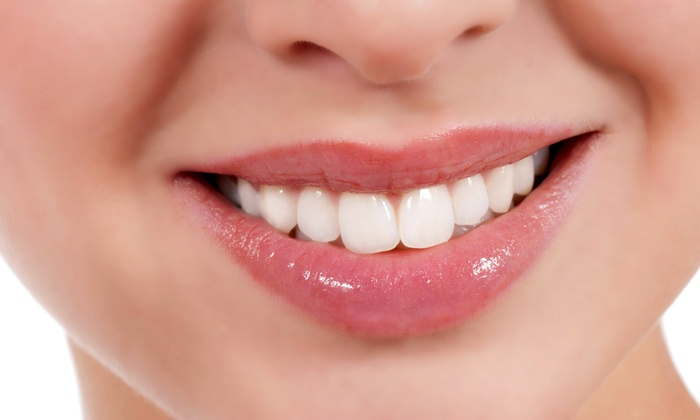 Alegria Dental Center - Mid-Wilshire: Checkup, Zoom! Whitening, or Both at Alegria Dental Center (Up to 92% Off)