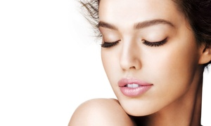 Skinspa: $40 for $60 Worth of Microdermabrasion at Skinspa