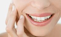 Wertgutschein über bis zu 110 € anrechenbar auf Professionelle Zahnreinigung in der Zahnarztpraxis Dr. Maximilan Pochert