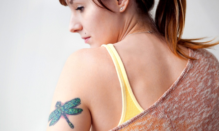 """New Look Spa - Commerce Township: $250 for Tattoo Removal for a 4""""x4"""" Area at New Look Spa ($475 Value)"""