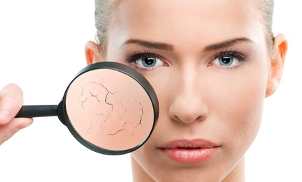 $129 for a Photo-Rejuvenation Treatment at Rejuv Skin & Laser Clinic ($329 Value)