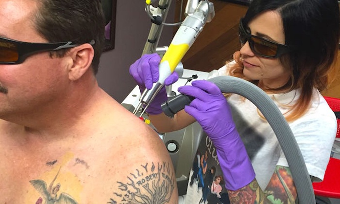 Area 51 - Laser Tattoo Removal - Springfield: Two Medium or Large Areas of Laser Tattoo Removal at Area 51 - Laser Tattoo Removal (Up to 79% Off)