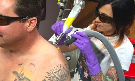 One or Two Laser Tattoo Removal Sessions of Up to 10 Square Inches Each at Area 51 Tattoo (Up to 75% Off)