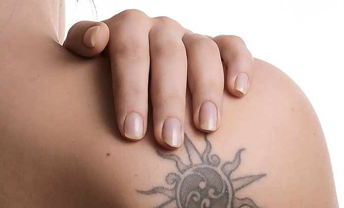 Laser Tattoo Removal: Four (from £69) or Six (from £89) Sessions at Demzines Tattoo Studio (Up to 89% Off)