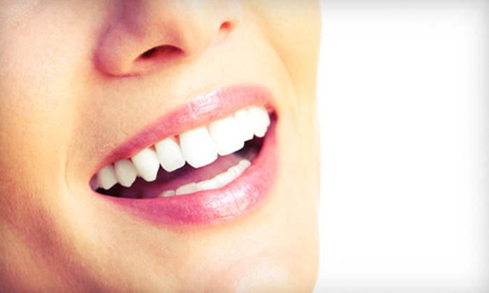 DaVinci Teeth Whitening Systems - Southeast: $99 for Three 20-Minute In-Office Teeth-Whitening Sessions at DaVinci Teeth Whitening Systems ($447 Value)
