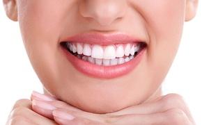 DENTAL LUQUE: Limpieza bucal con ultrasonidos por 12,95 € y con sesión de blanqueamiento LED por 49,95 €