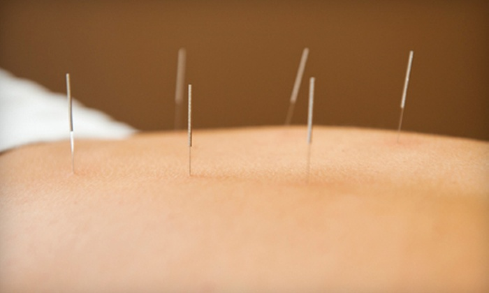 North Nassau Acupuncture LLC - Multiple Locations: $39 for an Acupuncture Session with Consultation at North Nassau Acupuncture LLC ($85 Value)