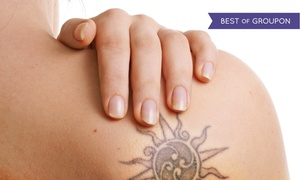 B Medical Spa: Three Tattoo Removal Sessions for Up to 6, 12, or 24 Square Inches at B Medical Spa (Up to 86% Off)