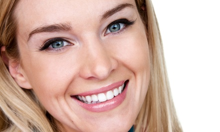 $109 for Two Laser Teeth-Whitening Treatments at Skin Embrace Medical Spa and Laser Center ($300)