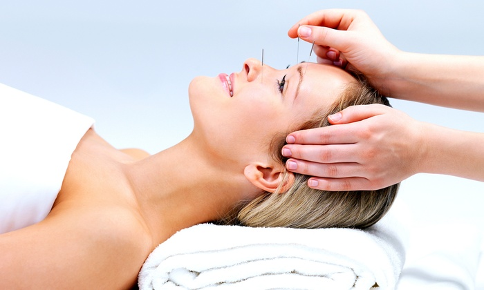 Bella Sundries Wellness Studio - Richelieu: $35 for a 60-Minute Acupuncture or Acupressure Session at Bella Sundries Wellness Studio ($75 Value)
