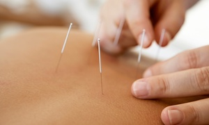 Carella Chiropractic and Acupuncture: Acupuncture Package with Optional Chiropractic Adjustment at Carella Chiropractic and Acupuncture (Up to 85% Off)