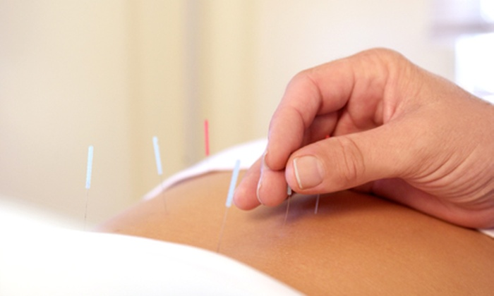 Coastal Acupuncture - Thomas Square: One or Three Acupuncture Sessions at Coastal Acupuncture (Up to 67% Off)