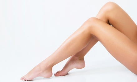 $179 for One Year of Laser Hair Removal for Up to Four Areas at Dermedica Laser & Spa ($2,392 Value)