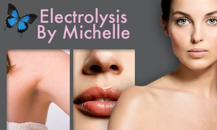 Electrolysis and Hair Laser Removal by Michelle - Aventura: $49 for Six Laser Hair-Removal Treatments at Electrolysis and Hair Laser Removal by Michelle (Up to $1,800 Value)