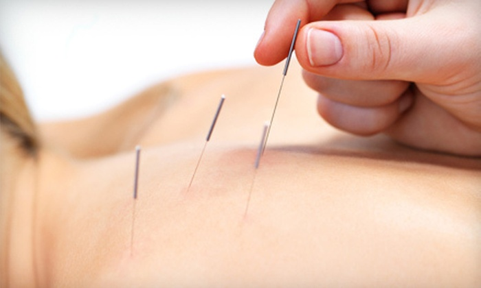 Middle Tennessee Wellness Center - Mount Juliet: One, Three, or Six Acupuncture Therapy Sessions at Middle Tennessee Wellness Center (Up to 69% Off)