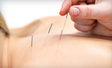 1 Acupuncture Therapy Session (a $100 value) - Middle Tennessee Wellness Center in Mt. Juliet