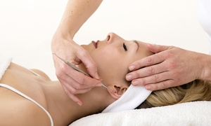 Drum Acupuncture Center: $125 for $250 Worth of Acupuncture — Drum Acupuncture Center