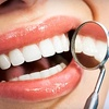 Up to 78% Off Dental Packages in Franklin