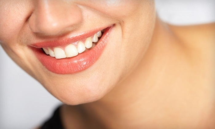 Laser Plus Spa - Carle Place: $49 for Brite White Teeth Whitening at Laser Plus Spa ($99 Value)