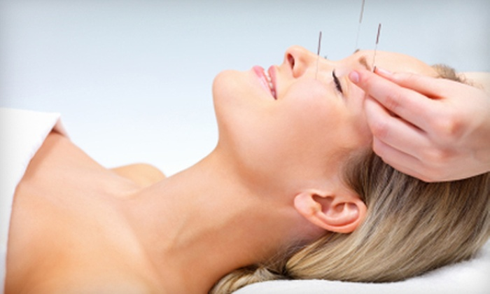 Taylored Acupuncture - Santa Barbara Downtown: Full-Body or Facial-Rejuvenation Acupuncture Treatments at Taylored Acupuncture