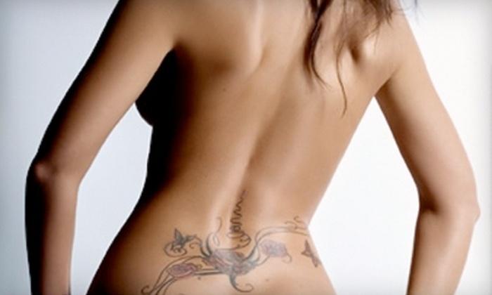 Atlantic Laser Tattoo Removal North Central Tattoo Removal Treatments At Atlantic Laser Tattoo